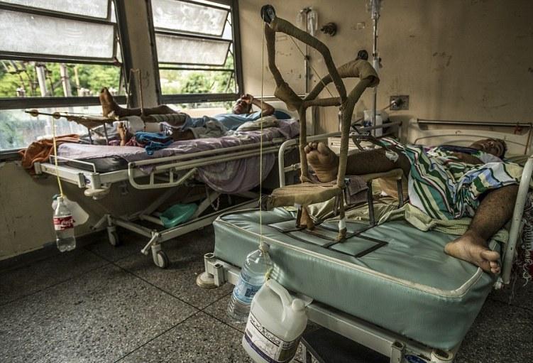 Βενεζουέλα: 170 δολάρια για ένα μπέργκερ ενώ πεθαίνουν από την πείνα!
