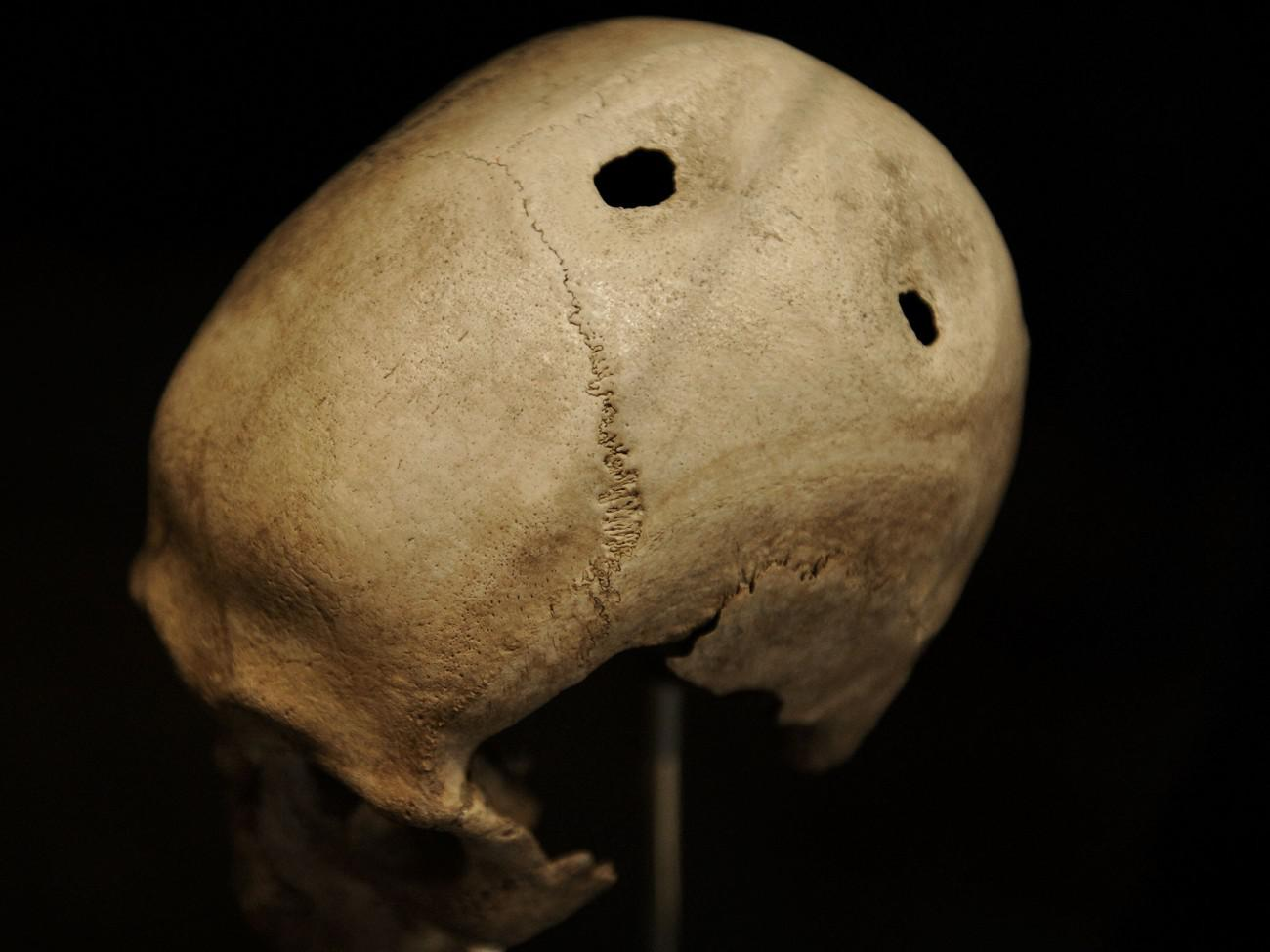 Αποτέλεσμα εικόνας για Μυστήρια της ανθρωπότητας: Γιατί οι πρόγονοι μας τρυπούσαν τα κρανία τους;