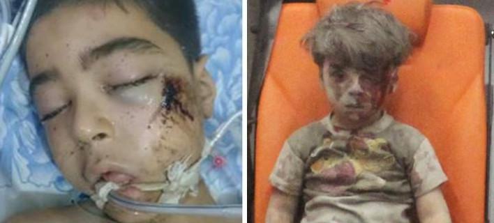xalepi708_4 Πέθανε ο αδελφός του 5χρονου Ομράν που συγκλόνισε τον κόσμο [εικόνα&βίντεο]