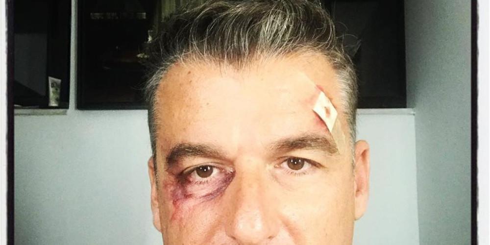 Φωτογραφία-σοκ του Γιώργου Λιάγκα: Γιατί είναι χτυπημένος