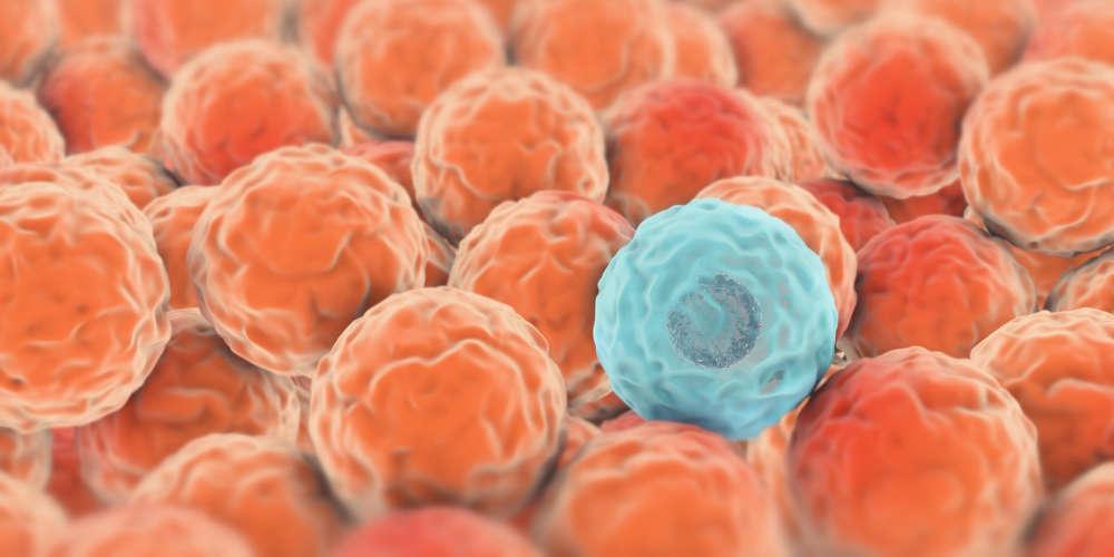 Βρέθηκε θεραπεία για τον καρκίνο; Επιστήμονες υποστηρίζουν ότι ανακάλυψαν κύτταρο που εξοντώνει καρκινικά κύτταρα