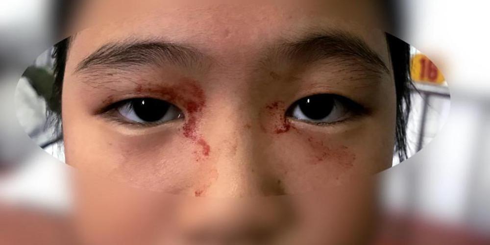 Η 11χρονη που ιδρώνει... αίμα - Πάσχει από σπάνια πάθηση λόγω στρες [εικόνες]