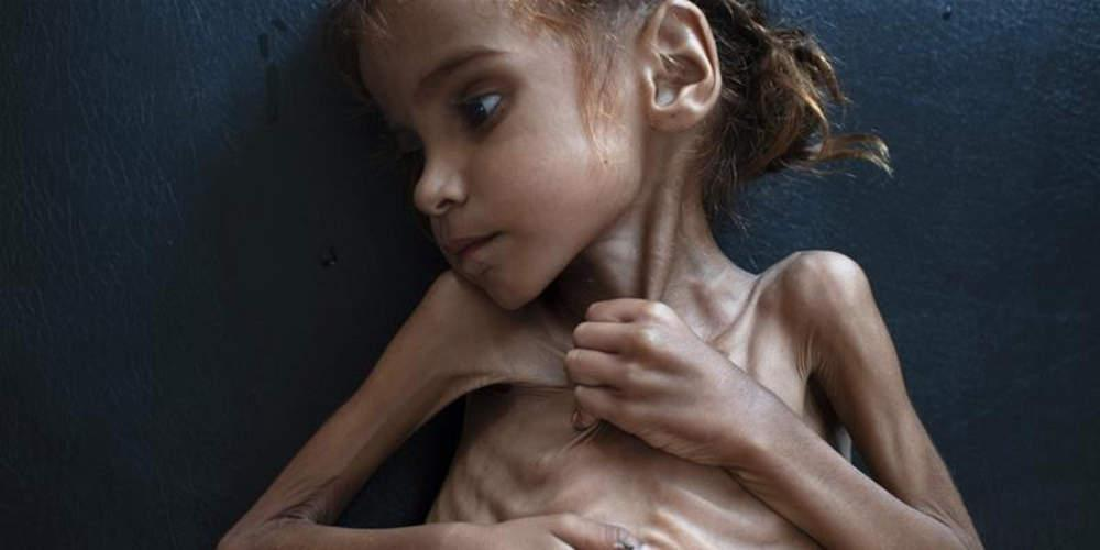 85.000 παιδιά κάτω των 5 ετών έχουν πεθάνει από υποσιτισμό στην Υεμένη σύμφωνα με την Save the Children
