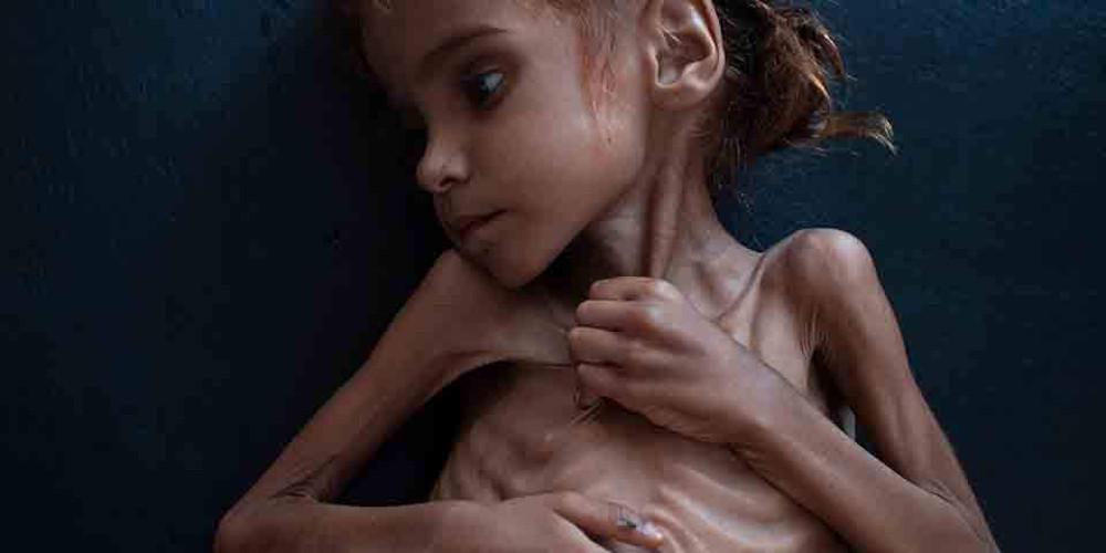 Τραγωδία: Πέθανε η 7χρονη Αμαλ - Το κορίτσι-σύμβολο του λιμού στην Υεμένη