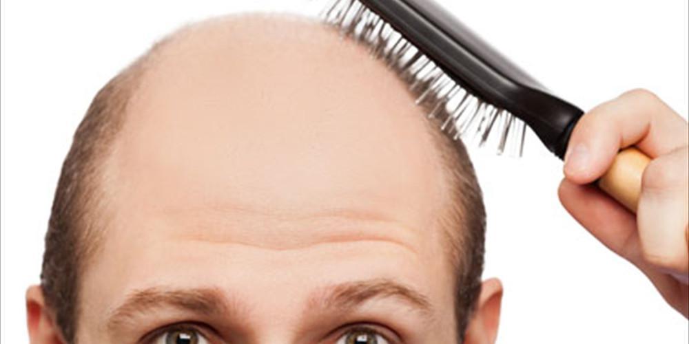 Η Τουρκία αυξάνει τα κέρδη της στον τουρισμό χάρις στην... μεταμόσχευση μαλλιών!