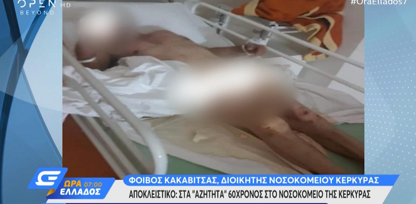 Σοκαριστική καταγγελία ασθενούς στο νοσοκομείο Κέρκυρας - Ήταν γυμνός, δεμένος και παρατημένος [βίντεο]