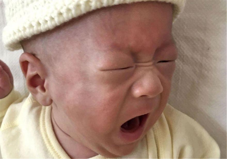 Απίστευτο: Το μικρότερο μωρό στον κόσμο από 268 γραμμάρια έφτασε τα 3,2 κιλά! [εικόνες]
