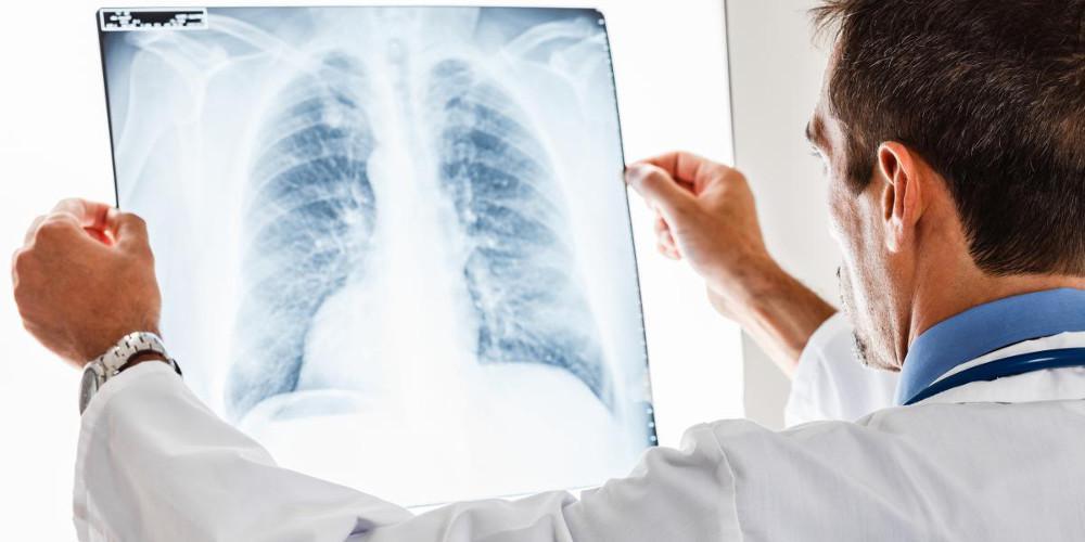 Από Χρόνια Αποφρακτική Πνευμονοπάθεια πάσχουν 500-700 χιλιάδες Έλληνες και οι μισοί δεν το γνωρίζουν