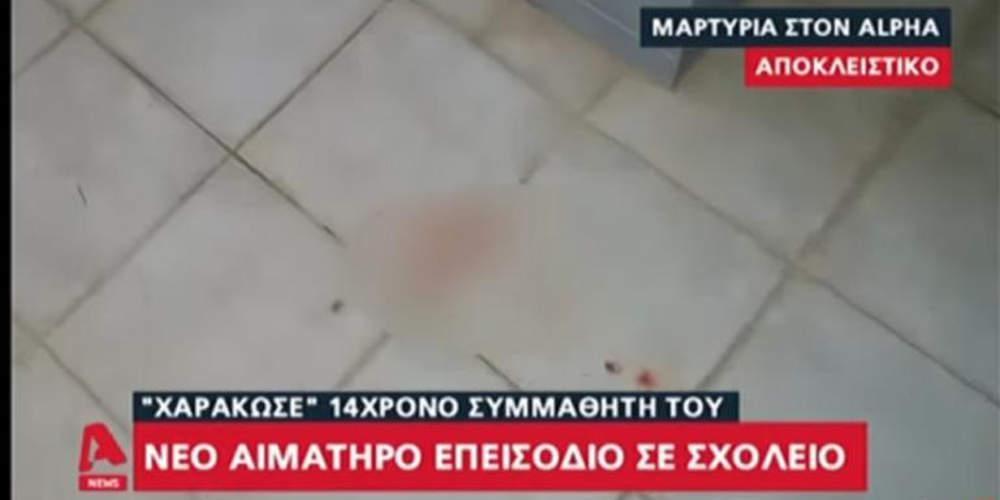 Νέο επεισόδιο σε σχολείο: 14χρονος χαράκωσε συμμαθητή του στο πρόσωπο