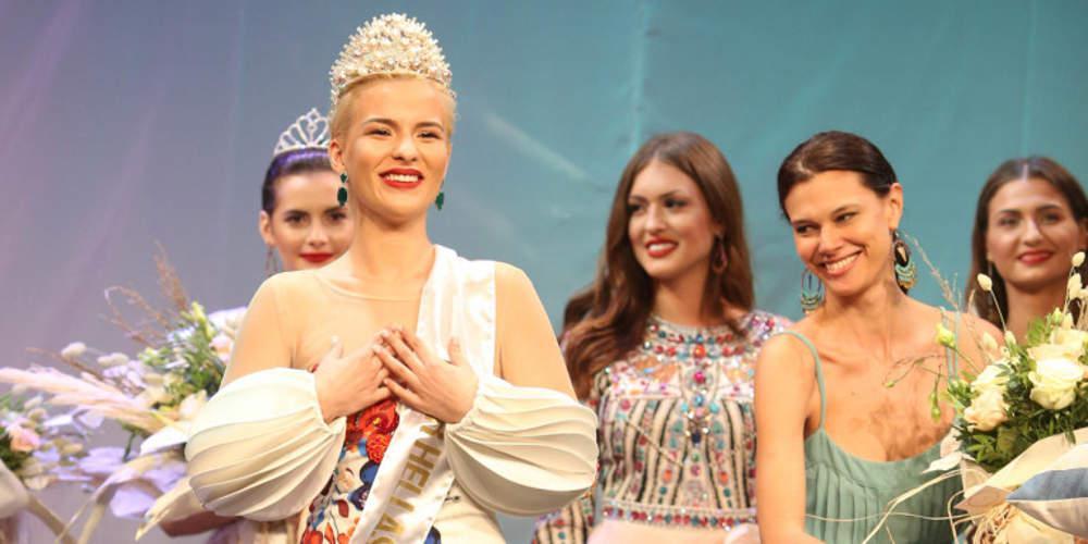 Η Σταρ Ελλάς μιλά για τον τραυματισμό της από την Μις Αυστραλία [βίντεο]