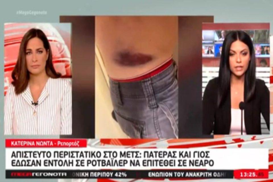 Μετς: Πατέρας και γιος έδωσαν εντολή στον σκύλο τους να επιτεθεί σε 30χρονο – Σοκάρει η καταγγελία